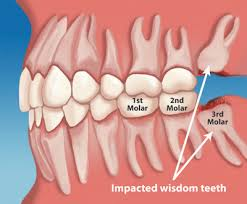 Wisdom Teeth can cause various problems if untreated